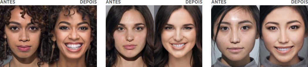 antes e depois nv jeunesse